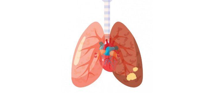 Lungcancer illustration