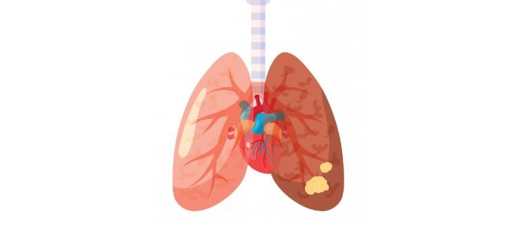 smärta i lungorna
