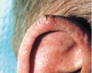Skivepitelcancer på örat