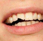 Akuta tandproblem utomlands