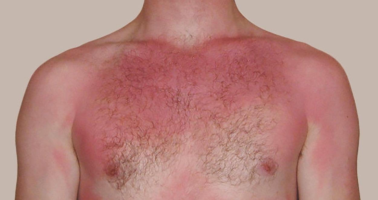 En man som blivit solbränd och därmed röd över hela kroppen. Någonting som kallas för första stadiets brännskada.
