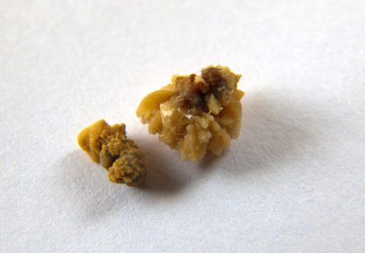 Två olika njurstenar