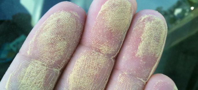Allt om allergisk reaktion – Allergier.se f956a4ee57e3c