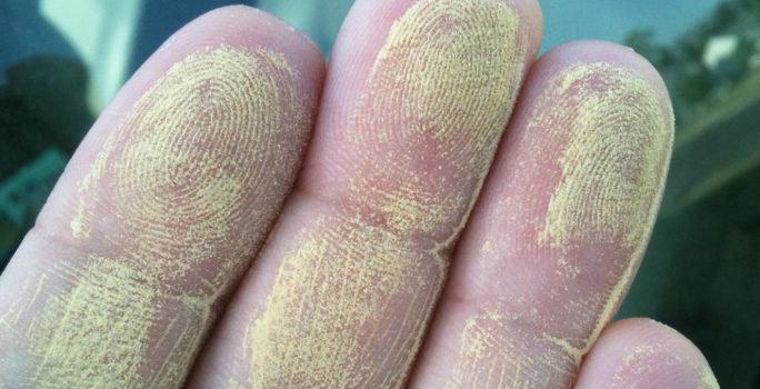 allergisk mot latex