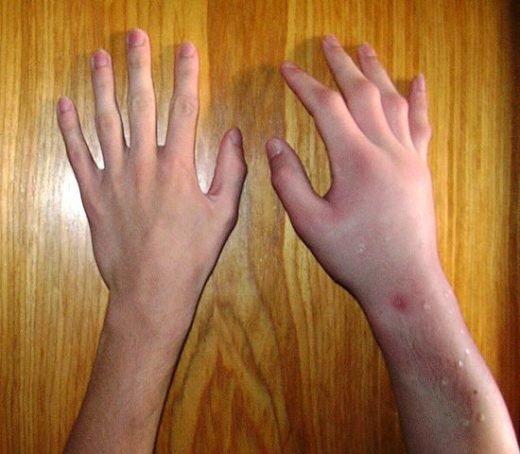 Närbild på händer varav en har blivit svullen och irriterad på grund av getingstick.