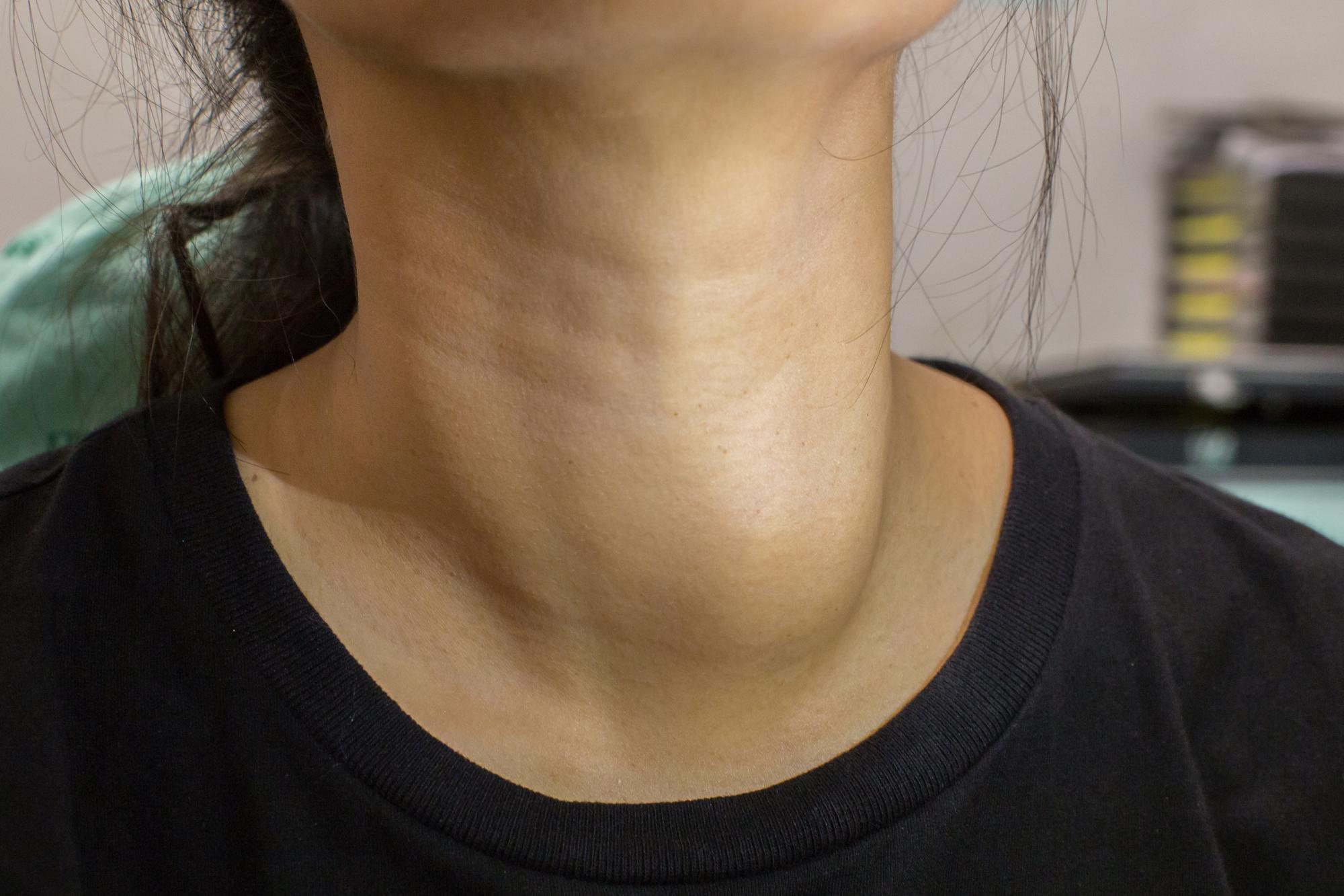 cysta på sköldkörteln symtom