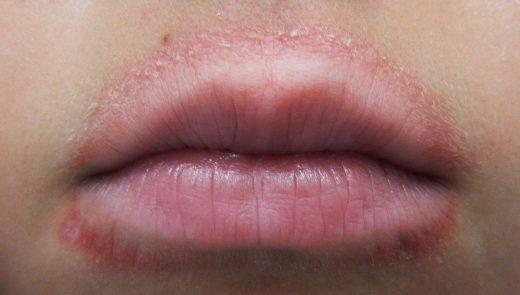 Typiskt för perioral dermatit är att det oftast finns en fri zon utan utslag närmast läpparna.