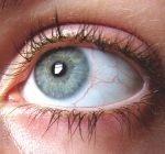 Rosacea i ögonen