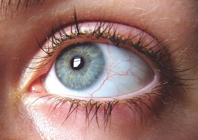 Svider i ögonen