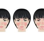 Test: Är dina ansiktsutslag rosacea?