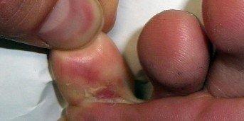 hur smittar fotsvamp