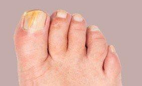 hur får man nagelsvamp