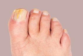 nagelsvamp på fingrar