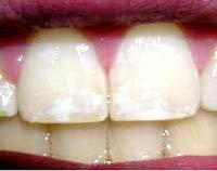 vita fläckar på tänderna vuxen