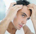 Orsaker till att du tappar hår