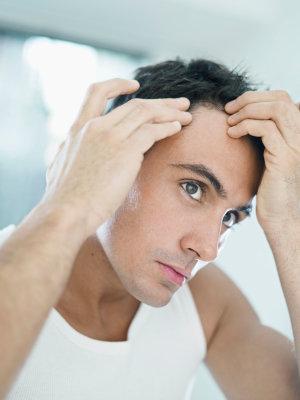varför tappar man hår på huvudet