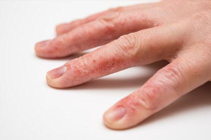 små blåsor på händerna