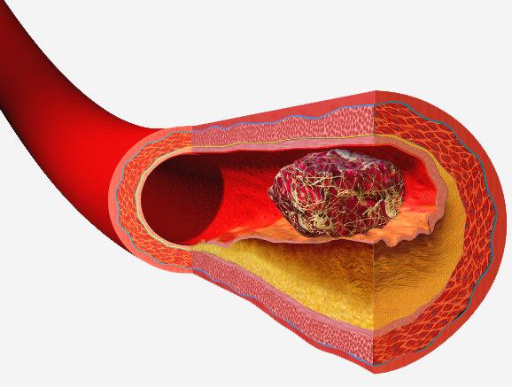 blodpropp i hjärnan symtom