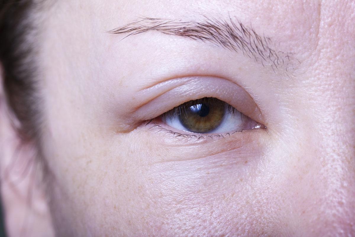 hur smittar ögoninflammation